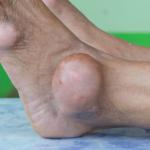 All About Gout; Symptoms, Diagnosis, Treatment