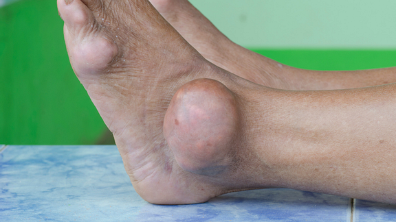 All About Gout; Symptoms, Diagnosis, Treatment
